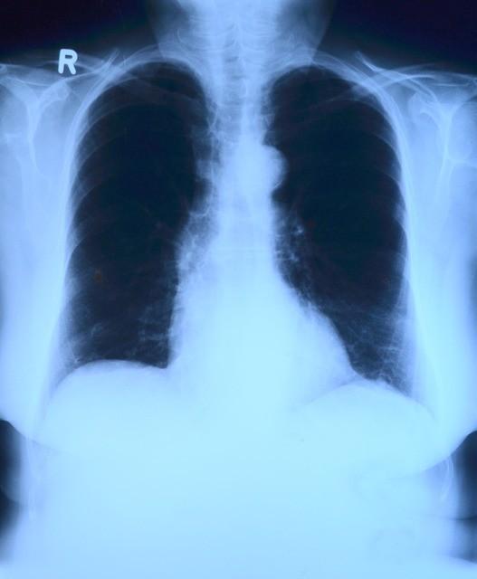 x-ray-image