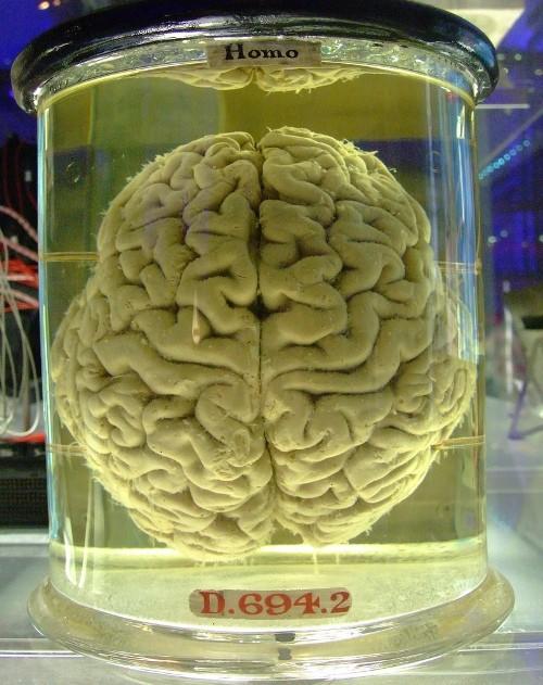 Un cerebro de Homo sapiens