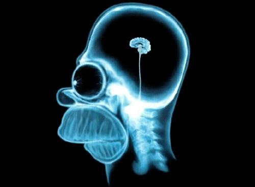 Cerebro hueco