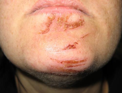 Lesiones en la cara debidas a una contusión del airbag
