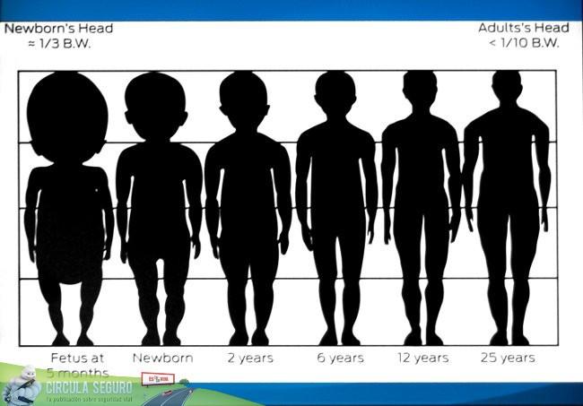 Desproporción entre cabeza y cuerpo de un niño