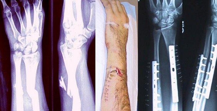 Cómo mata un accidente (1): fractura por impacto, fuerzas