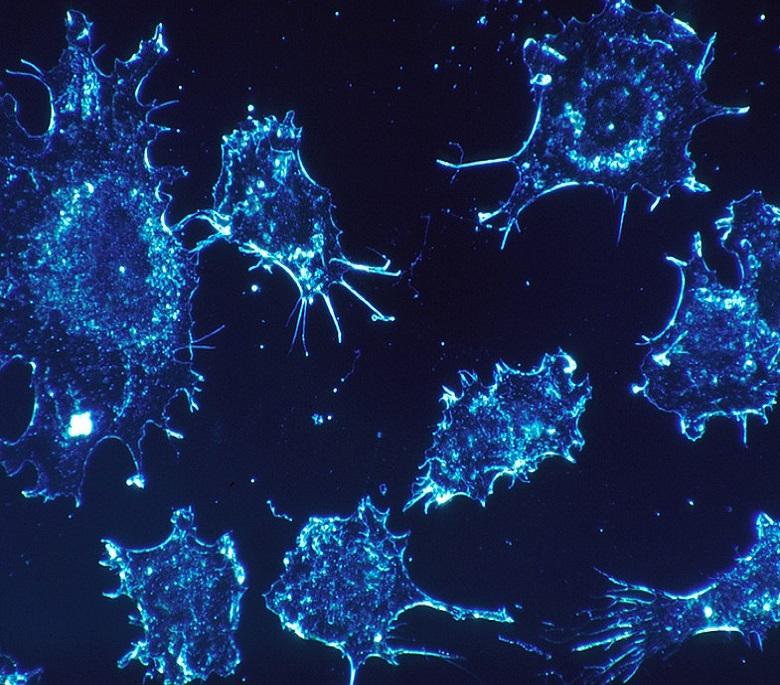 Biosensor cáncer