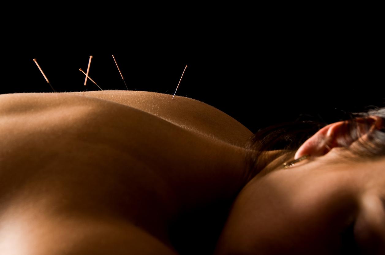 acupuntura es pseudociendia con fines curativos