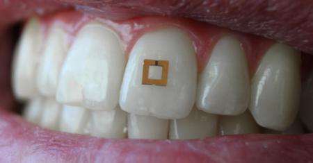 Sensor diente
