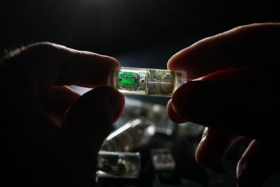Sensor con bacterias para detectar dolencias gastrointestinales