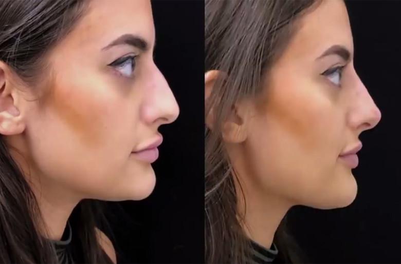 Antes y después de la intervención de cirugía de Marla Frezza, en una imagen de Broadly/VICE