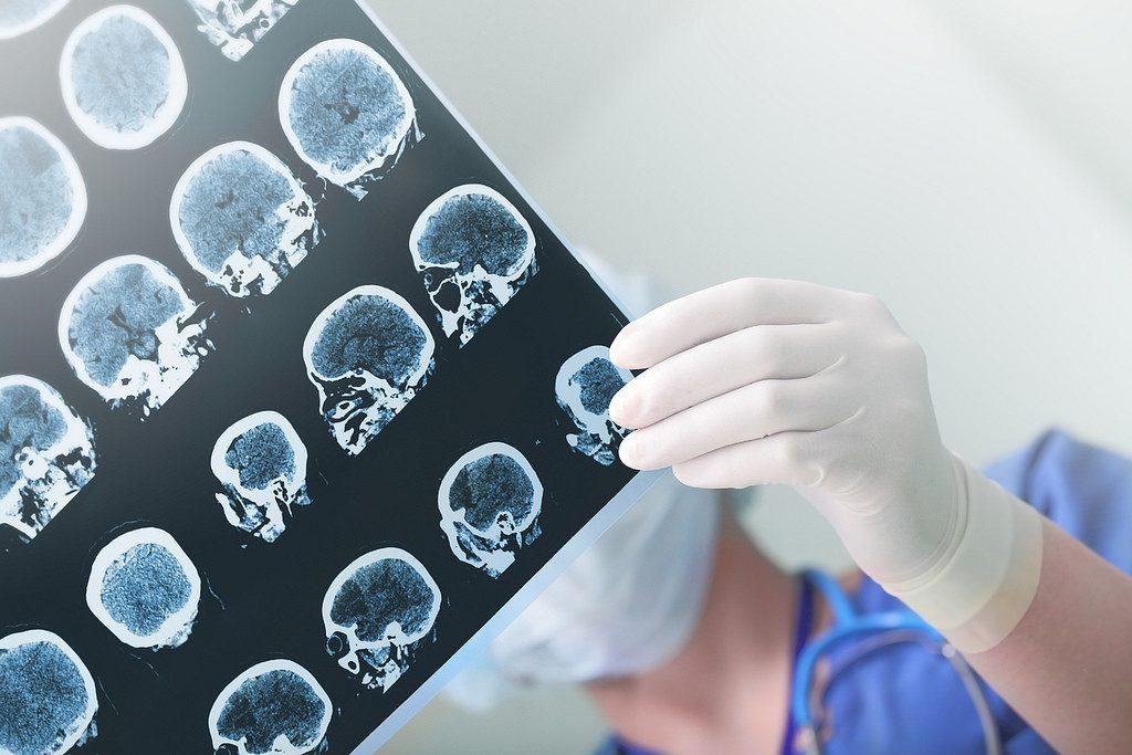 Estimular el cerebro con realidad virtual puede dar información sobre su funcionamiento.