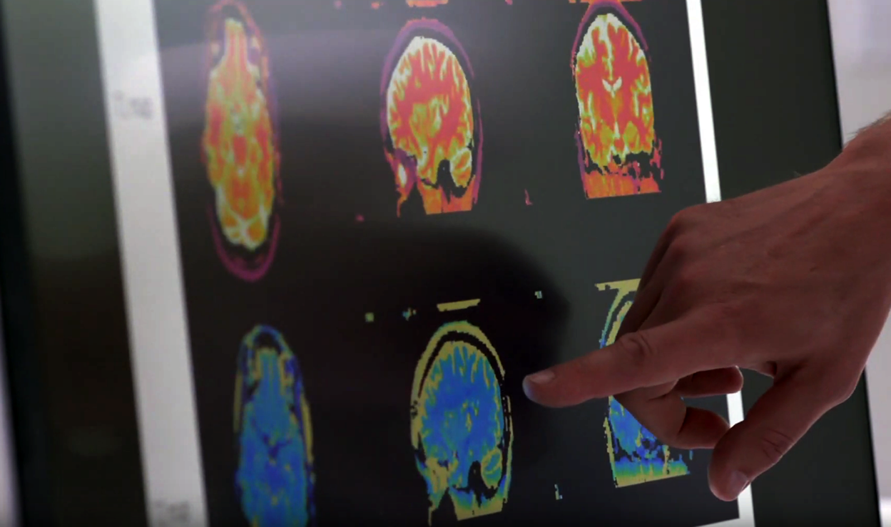 MRI computación cuántica