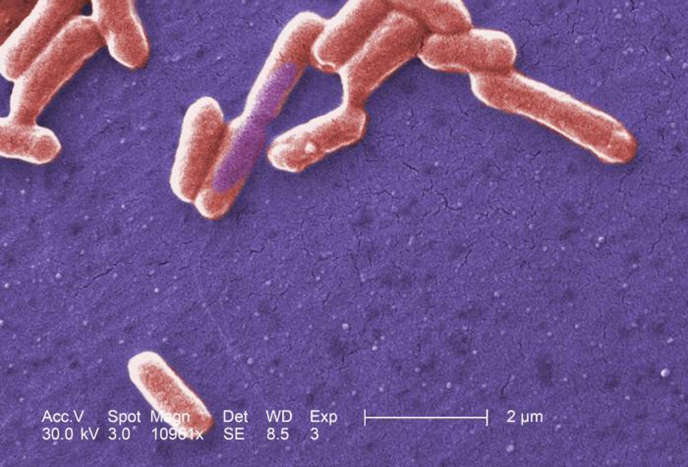 bacteria ecoli farmaco antibiotico halicina