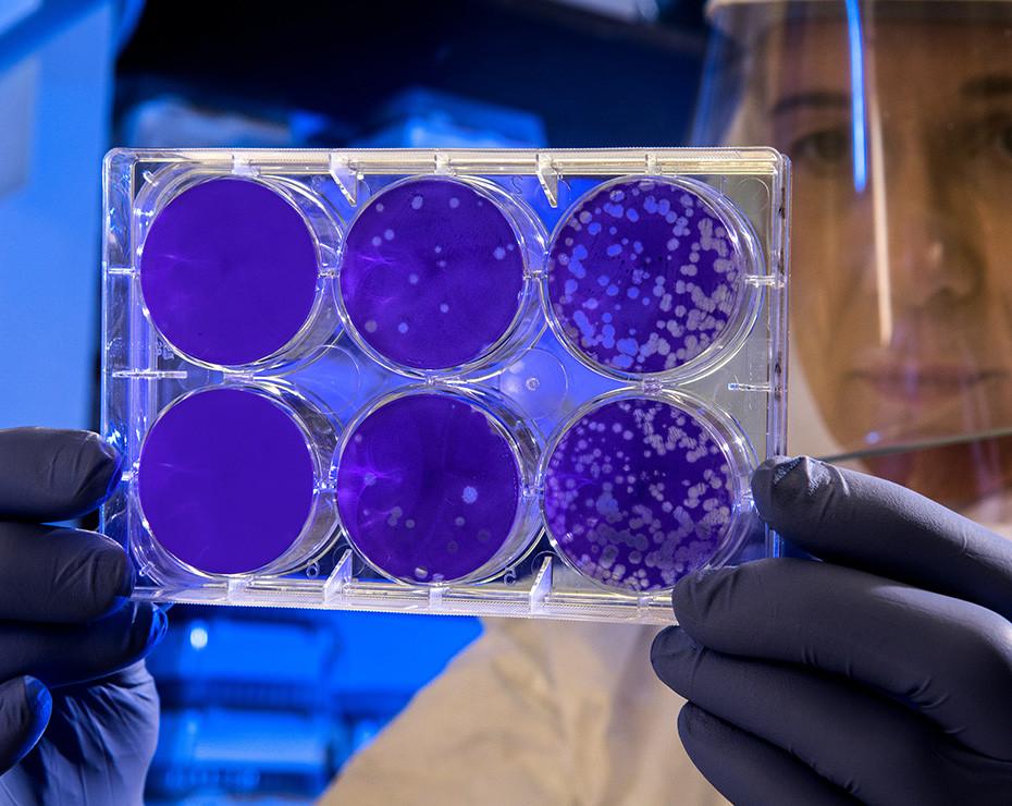halicina farmaco deeplearning