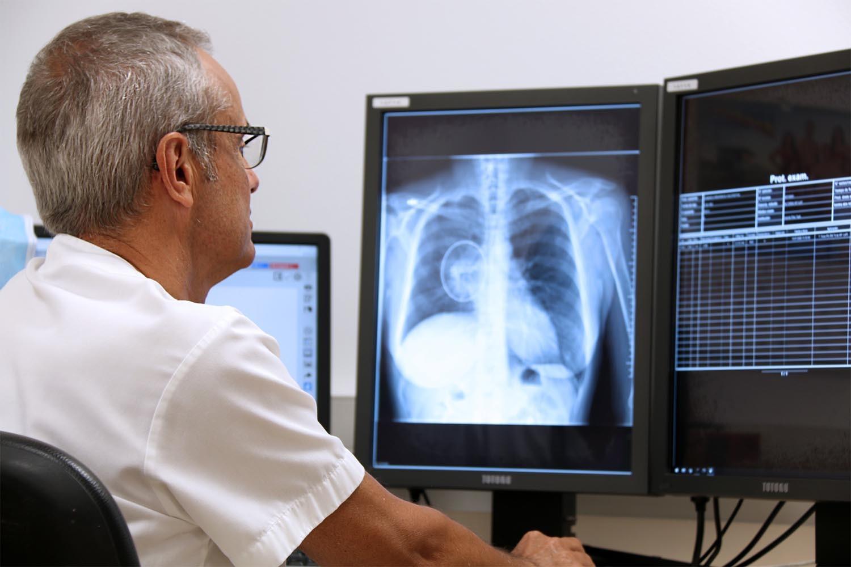 Cáncer de pulmón en radiografías