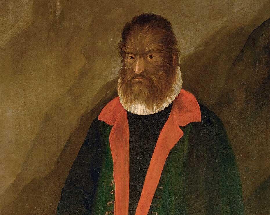 Petrus Gonsalvus fue uno de los primeros casos registrados de hipertricosis.