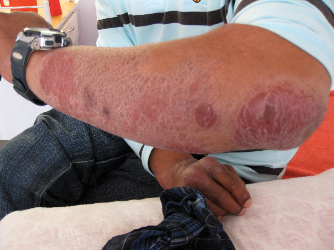 lepra sintomas