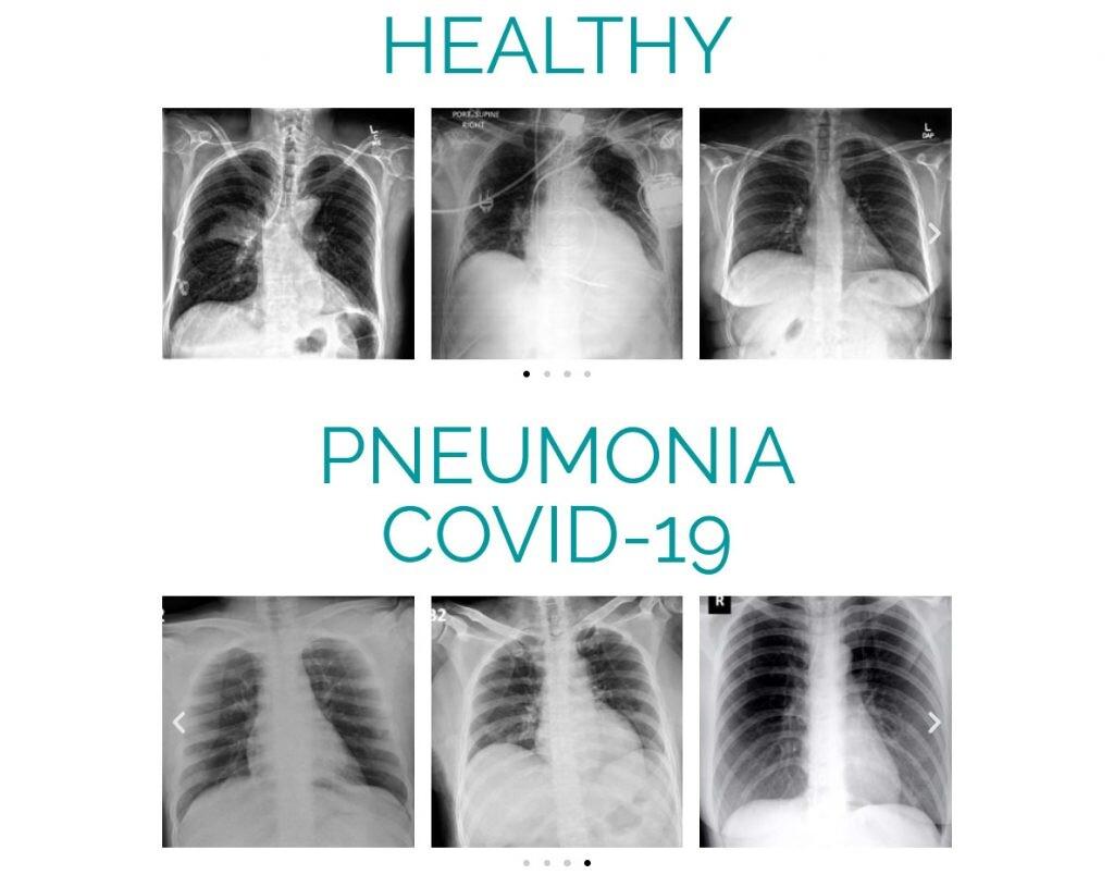 radiografías de pulmones COVID-19
