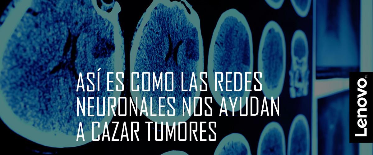 El tumor que no detecta un humano cáncer