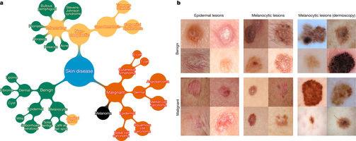 detección del cáncer mediante red neuronal
