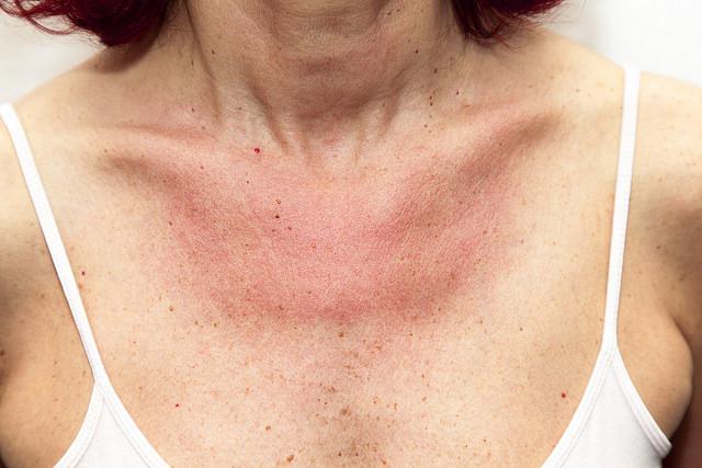 diagnostico de cancer piel