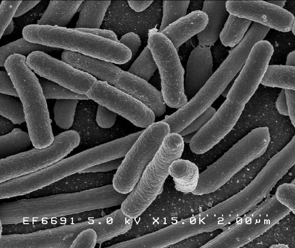Escherichia Coli bacteria microscopio