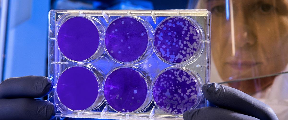 tratamientos con bacteriófagos en medicina