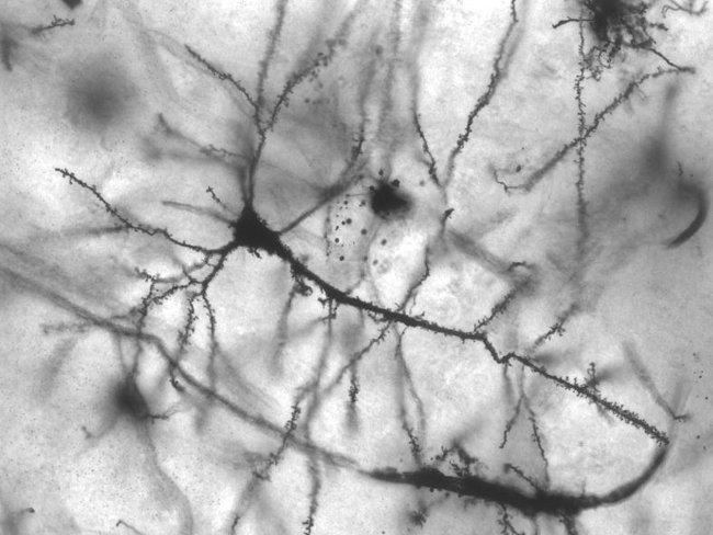Conexiones sinápticas entre neuronas
