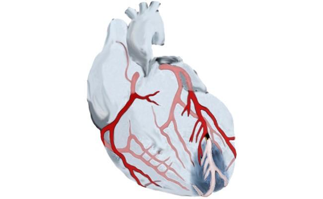 Infarto de miocardio y conducción