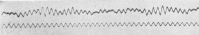 Uno de los primeros electroencefalogramas producidos por Hans Berger.