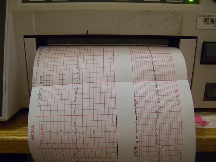 Enfarte do miocárdio e condução