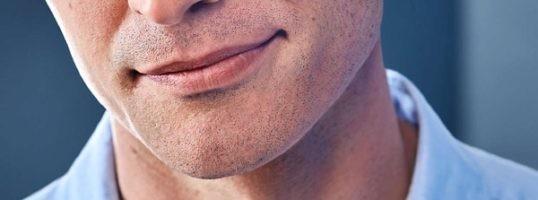 irritacion en el afeitado