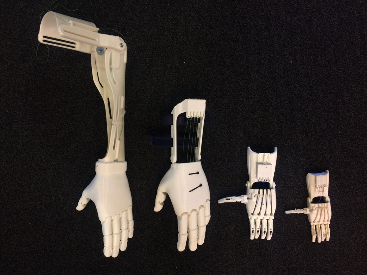 3d printed prosthetic arms